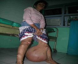8 Penyakit Aneh Yang ada di Indonesia